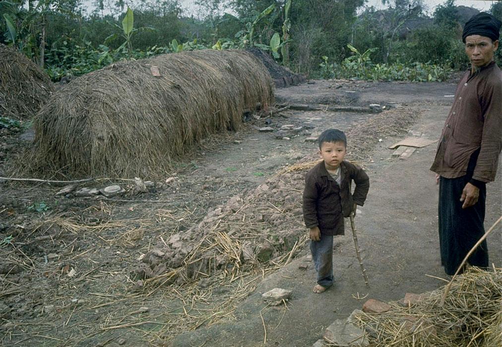 Miền Bắc Việt Nam 1967. Một bé trai bị cụt chân do không kích dùng cành cây chống nạng đứng cạnh bố.